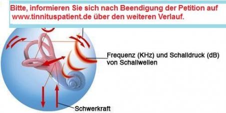 Patienten wünschen Studien zur Wirkung der hochdosierten Low-Level-Lasertherapie bei Morbus Menière und Tinnitus.