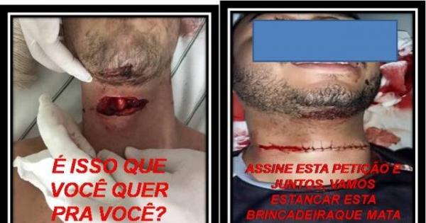 APROVAÇÃO PELOS SR'S DEPUTADOS E SENADORES FEDERAIS DA LEI QUE PROIBE O USO DA LINHA CHILENA NO BRASIL